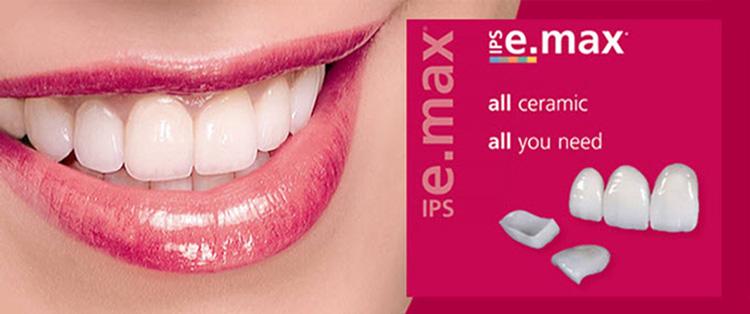 Porcelain Veneers Wythall - Omnia Dental Spa